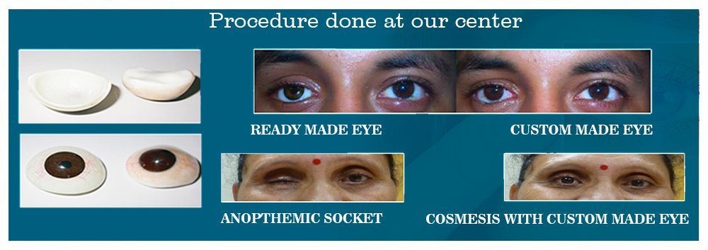 Ophthalmologist In Ahmedabad, Prosthetic Eye in Ahmedabad Ahmedabad Gujarat, Navkar Hospital Ahmedabad, Navkar Eye Hospital Ahmedabad
