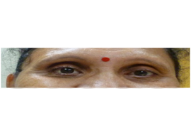 Eye Surgery in Ahmedabad