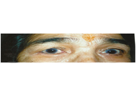 Artificial Eye Surgery in Ahmedabad