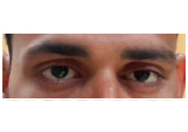 Oculoplasty Doctor in Ahmedabad