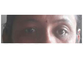 Oculoplasty Doctor in Rajasthan