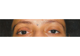Artificial Eye Surgery Doctor in Rajasthan
