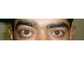 Ophthalmologist Surgery in Ahmedabad