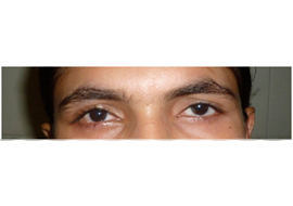 Lacrimal Treatment in Ahmedabad