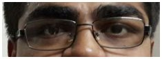 Ophthalmologist Surgery in Ahmedabad, Laser Eye Surgery Cost in Ahmedabad, Eye Hospital in Ahmedabad List.